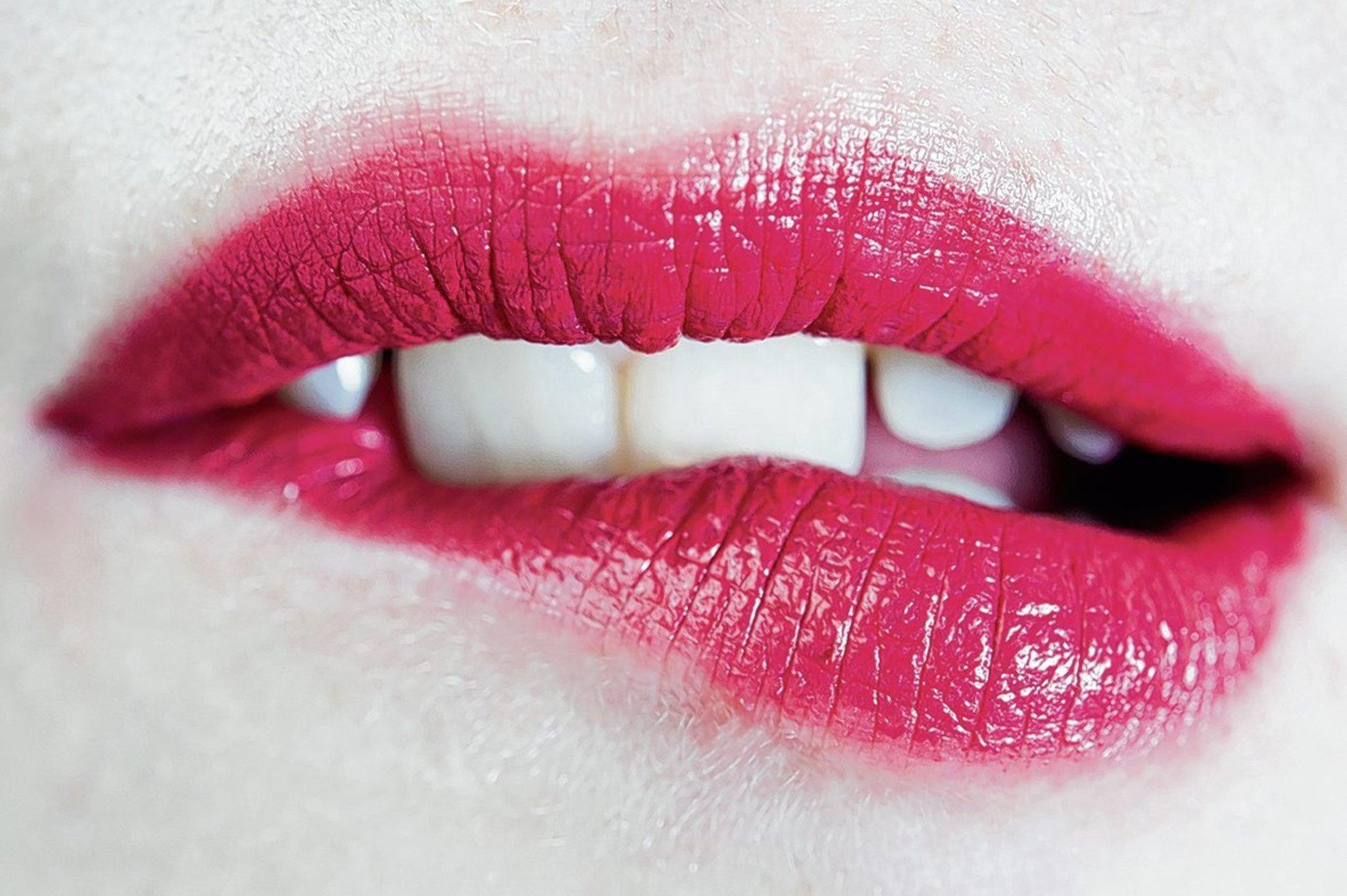 36 Best Photos Wann Ist Lippenherpes Nicht Mehr Ansteckend