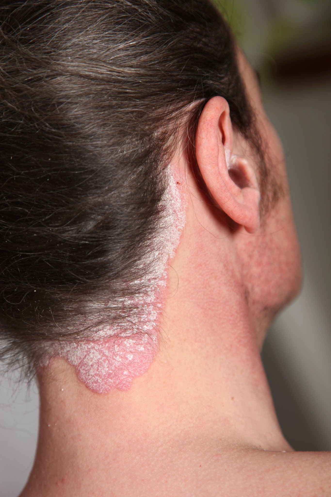 Menschen Mit Schuppenflechte Leiden Nicht Nur Körperlich Sondern
